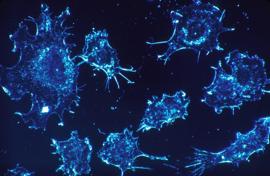 cilt kanseri ve melanom