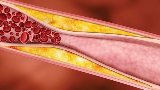 Biotin ve kan şekeri