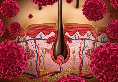 melanoma-nedir-cilt-kanseri-belirtileri-neler-1024x682